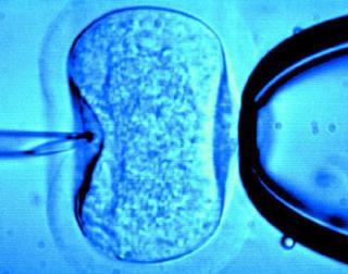 卵子核.jpg